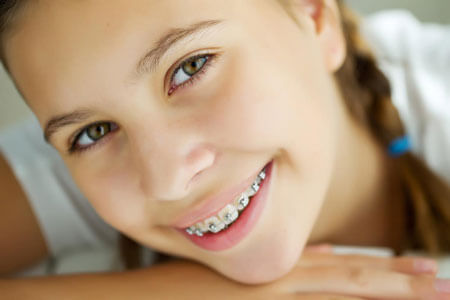 Orthodontist in Jackson & Battle Creek, MI - Early Treatment
